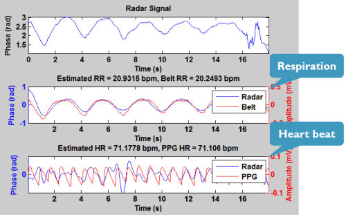 Radar signals can detect heartbeat and respiration, although not at medical-grade accuracy.