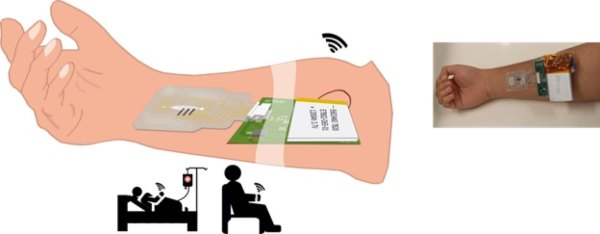 Indian researchers have developed a new device that can generate sweat at resting and detect markers and transmit through a mobile phone.